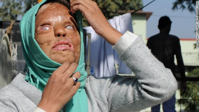 Indian acid attack victim fights for justice