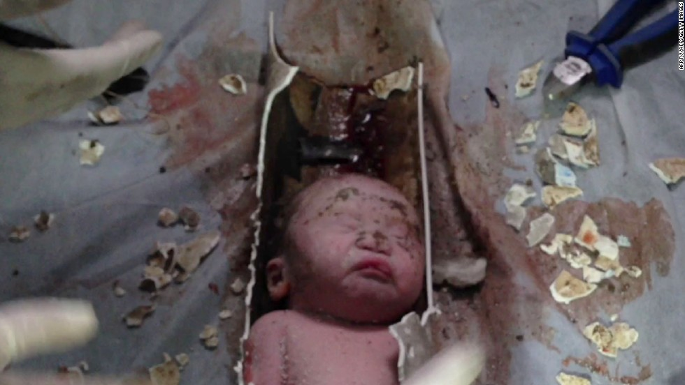 The tiny face of a newborn baby boy is revealed as rescuers cut apart a sewage pipe at a hospital in Jinhua, China, on Saturday, May 25.