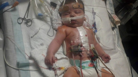 Connor's parents say while they were in the hospital, they asked staff multiple times for information about survival rates, but never got answers.