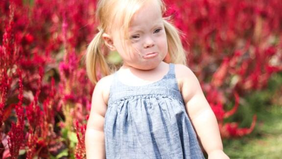 Even a happy little girl like Marley gets sad or frustrated sometimes. Jack and Jana Barr say she is much like any other 2-year-old child.