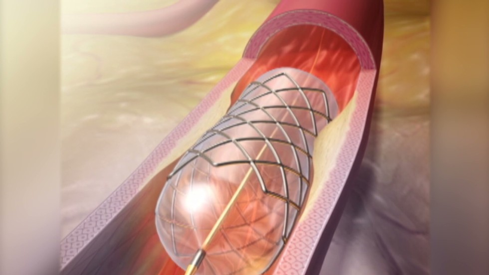 For heart disease, meds may work as well as invasive surgery, major trial shows