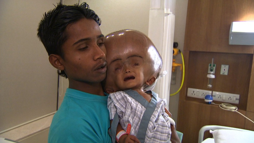 Indian Child Roona Begum Recovering After Hydrocephalus-7438