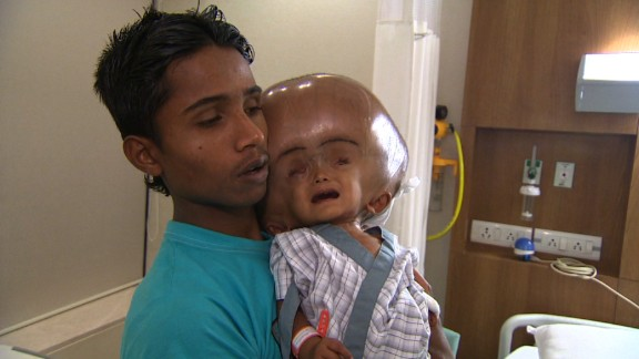 """""""Day by day her head started growing bigger, she stopped wanting to eat, she would just lie in bed, it became very difficult for us to carry her and take her anywhere,"""" Roona's father Abdul Rehman said."""