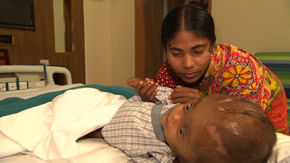 Before Roona underwent several surgeries to reduce the swelling, the skin of her head was stretched so far that it pulled her eyelids over her eyes, making it impossible for her to see.