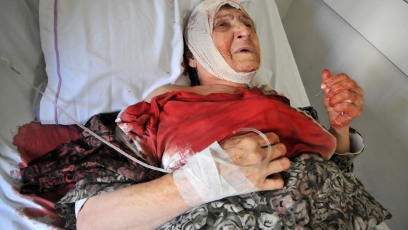 A woman rests after being injured by a blast in Tripoli.