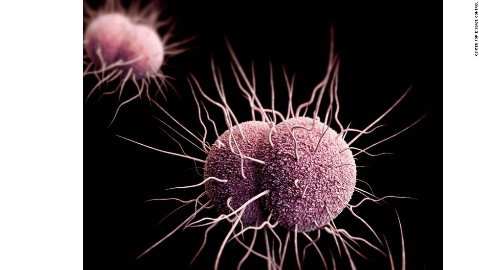 Neisseria gonorrhoeae, the bacteria that cause gonorrhea, are developing resistance to the main drugs used against them. Left untreated, gonorrhea can cause serious health problems, including pelvic inflammatory disease in women and a painful condition in the tubes attached to the testicles in men.