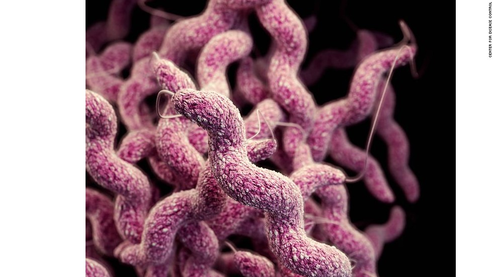 Campylobacter are among the most common cause of food poisoning and diarrhea. They are now showing resistance against the drug fluoroquinolone.