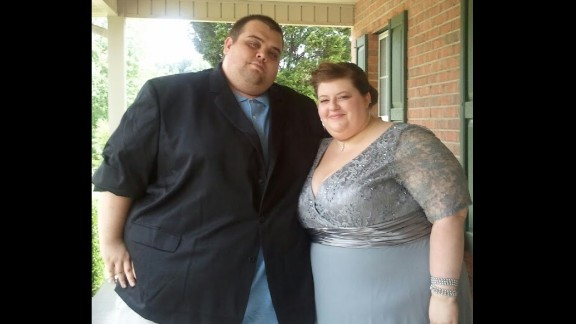 Lauren and Justin Shelton attended her sister's wedding in September 2011. At the time, regular things like buckling a seat belt were a struggle for them because of their size.