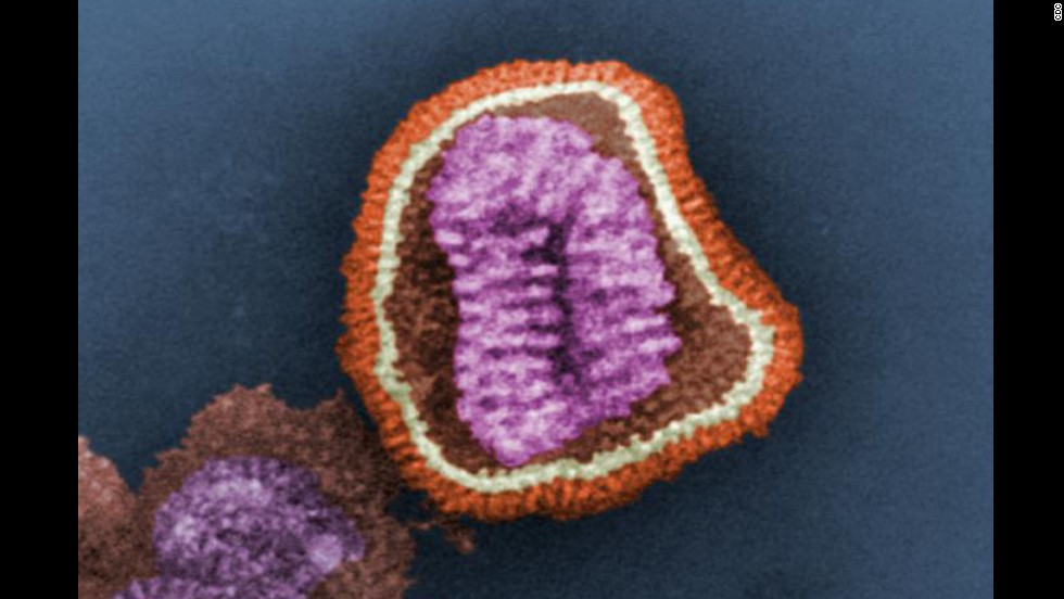 This is an influenza virus particle, also known as a virion, according to the Centers for Disease Control and Prevention. Virions are made up of an outer protein shell and an inner core of nucleic acid: in this case, eight single-stranded RNA segments.