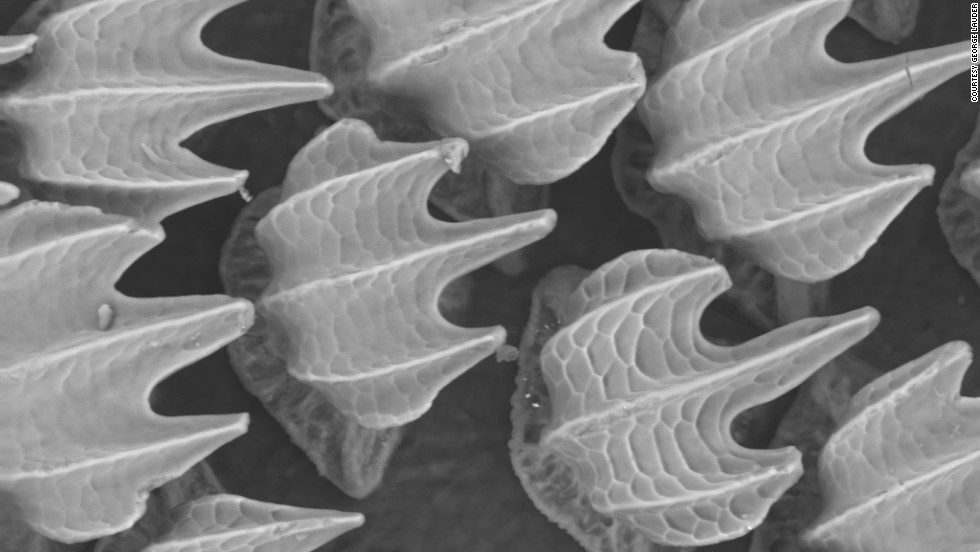 "This microscopic image of shark skin shows the dermal denticles which are much like tiny teeth. ""It's not a favorable place for bacteria -- they don't like to colonize there,"" said chemist Mark Dorfman of the Biomimicry Institute. ""By putting it on a hospital surface it could remove the need for harsh chemicals."""