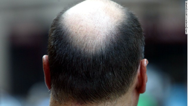 Side effects include     a potential treatment for baldness - CNN