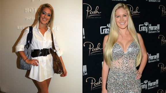 "Heidi Montag started with breast augmentation and a nose job in 2007 and eventually opted for 10 surgeries in order to change her look -- leaving her unrecognizable to many of her fans from the reality show ""The Hills."""