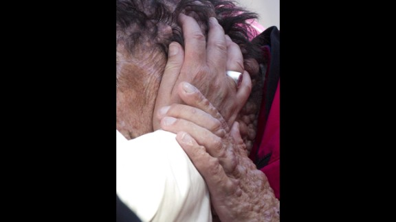 The man was identified as suffering from neurofibromatosis, a condition that carries a high risk of tumor formation.
