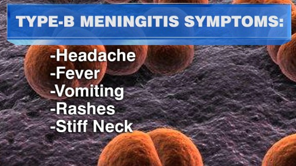 Meningitis Symptoms