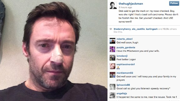 Hugh Jackman posted a picture to Instagram in November showing his nose bandaged after his doctor found and removed a cancerous growth.