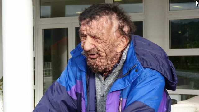 Meet the disfigured man the Pope embraced