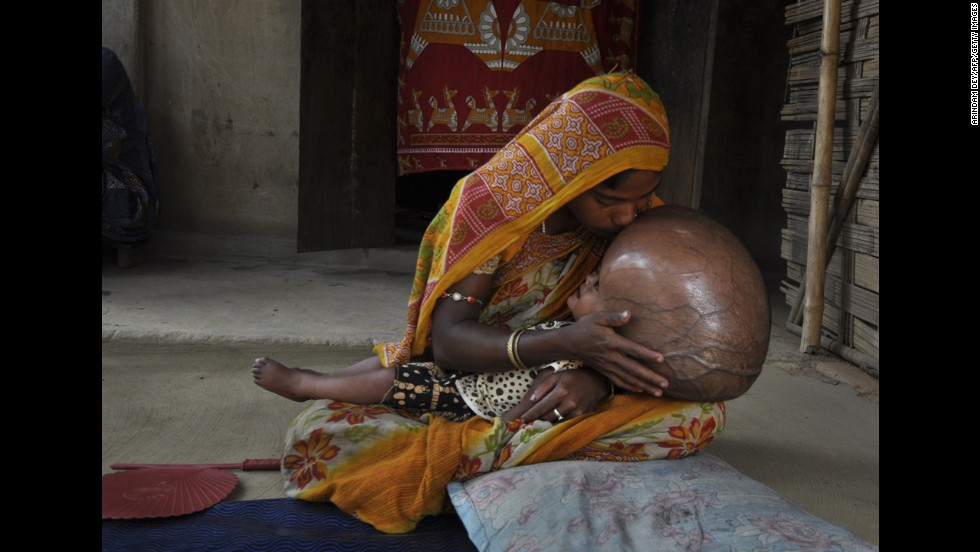 <strong>April 13:</strong> Indian villager Fatima Begum kisses the head of her 18-month-old daughter, Roona, at their hut in Jirania, India. Roona suffers from hydrocephalus, a disorder causing cerebral fluid to build up in the brain. Doctors had given her just a few months to live, but she recently underwent surgery to improve her condition.