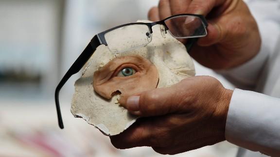 February 5: Anaplastologist Hernan Baron displays a prosthetic eye at his studio in Bogota, Colombia.