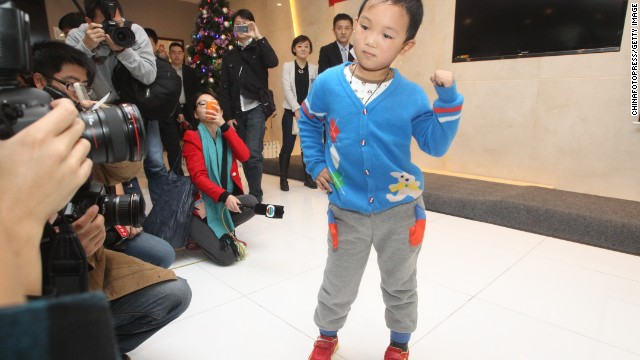 Six-year-old Guo Bin attends a farewell party on Thursday in Shenzhen, China. Guo Bin was discharged from hospital after successful orbital implants surgery, restoring his appearance but not his sight.