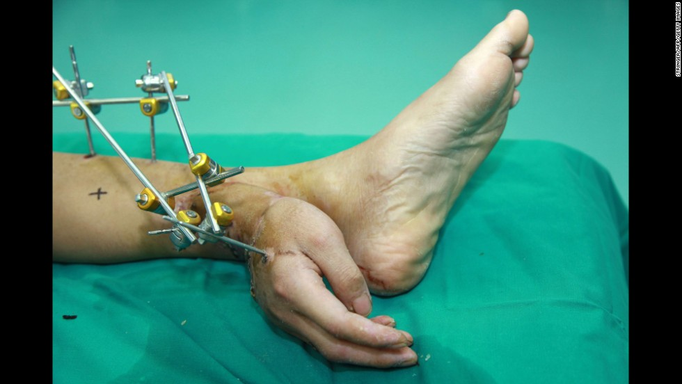 <strong>December 4:</strong> Xiao Wei lies on a hospital bed in Changsha, China, with his hand grafted to his ankle. Wei lost his right hand in a work accident and doctors were able to save it by temporarily grafting it to his ankle, local media reported. The hand was later reattached to his arm after the arm healed enough for surgery.