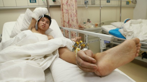 Doctors grafted Xiao Wei's right hand onto his ankle