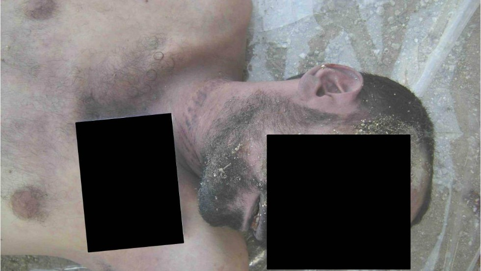 More patterned marks allegedly left behind by strangulation.