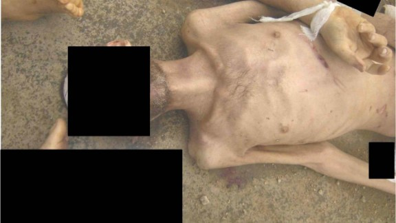 An emaciated man with marks allegedly left behind from beatings.