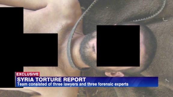 amanpour syrian war torture a_00054523.jpg