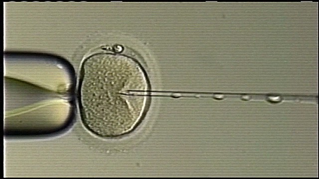 dnt sperm switch ferility clinic_00001405.jpg