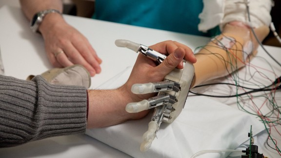 Sorensen's experience with the hand was documented in a February 2014 study in the journal Science Translational Medicine.