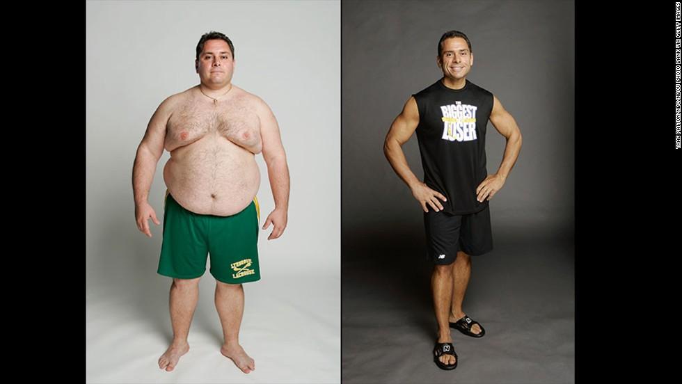 Biggest Loser Winner Talks Regaining The Weight Cnn