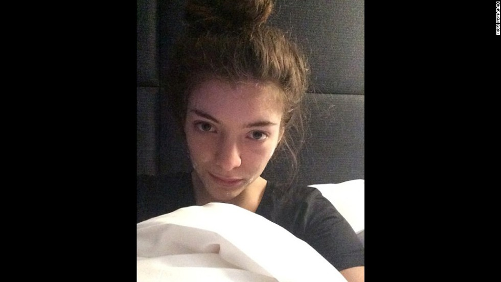 "Singer Lorde posted a makeup-less selfie on her Instagram account in February 2014 with the caption ""In bed in Paris with my acne cream on."""
