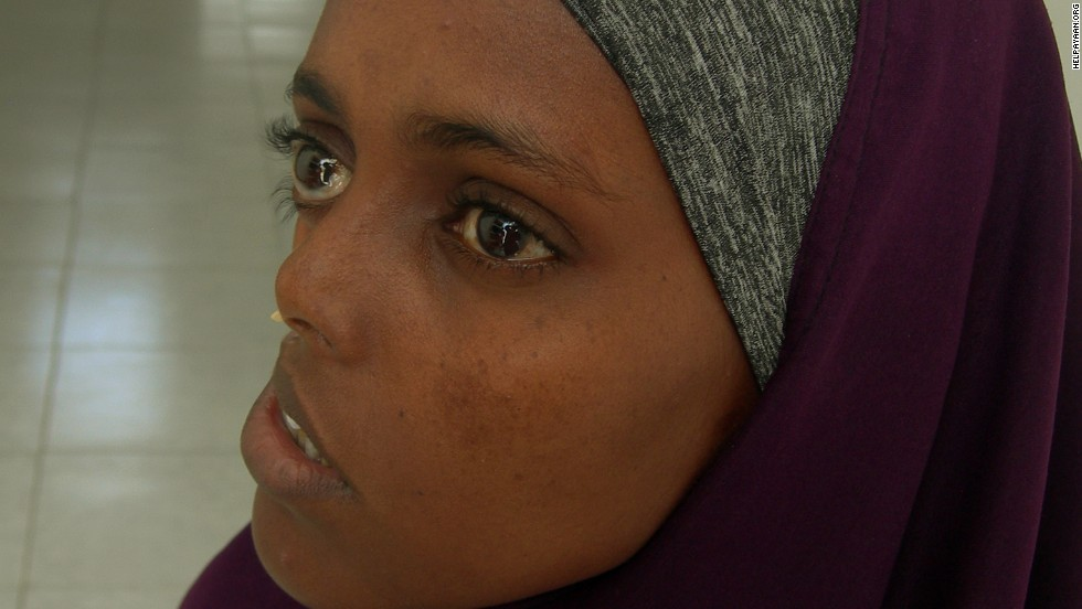 Somali Woman Waits 23 Years For Surgery To Fix Shattered Face Cnn