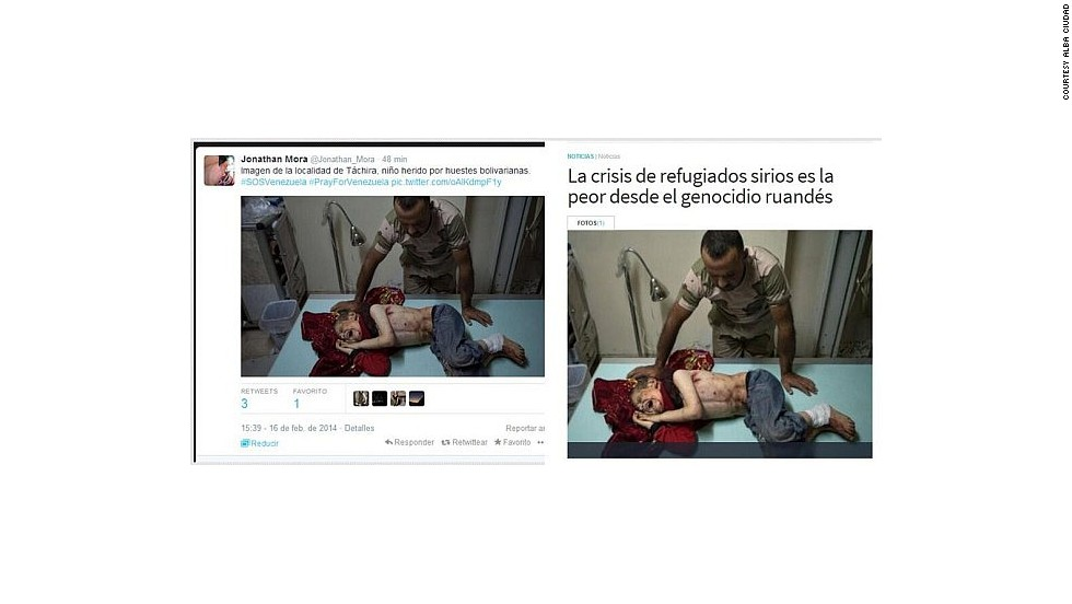 "People tweeting this photo this week alleged that it showed a child injured in the state of Tachira. This is actually an image of a child wounded in the Syrian conflict. The United Nations <a href=""http://www.cnn.com/2013/12/12/world/meast/syria-civil-war/"">confirmed that chemical weapons were used </a>against civilians, including children, in August."