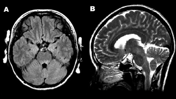 Figure 1. Magnetic resonance images of the brain. A) Hyperintense lesions in the tegmentum of the pons in the axial section of the fluid-attenuated inversion recovery image. B) In the sagittal section of the T2-weighted image, hyperintense lesions are present in the tegmentum of the midbrain, pons, and medulla oblongata.