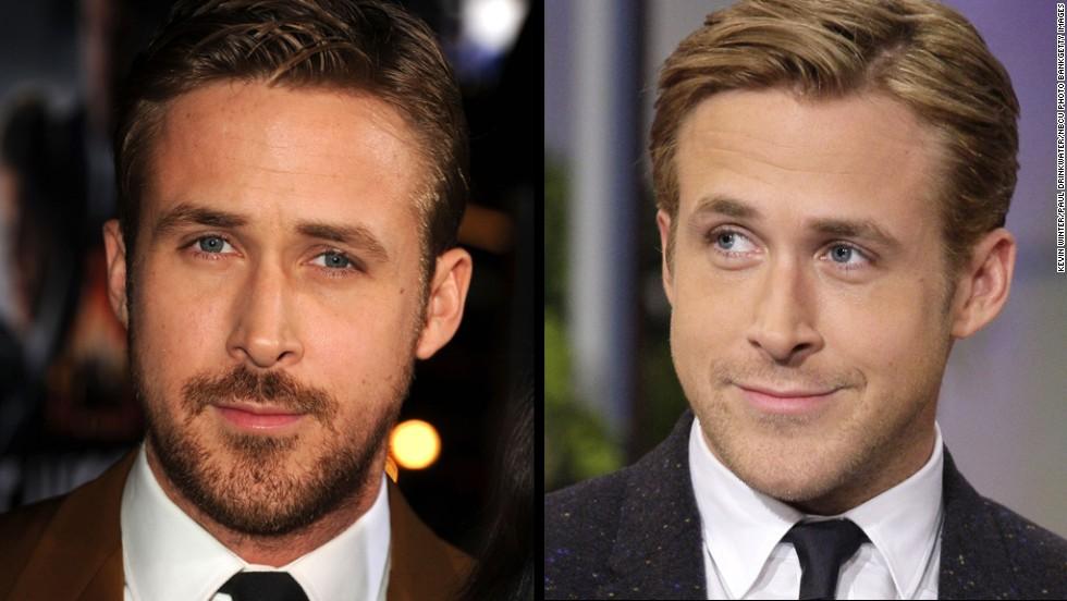 Beard Envy Surgery May Be The Answer Cnn
