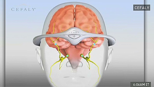 fda approves first medical device for migraine prevention cnn