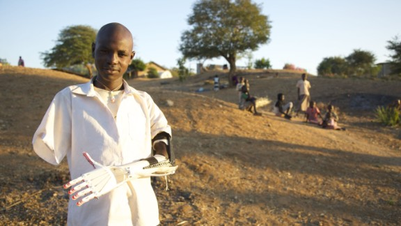 Van As gave American Mick Ebeling a crash course in 3-D printing, so that Ebeling could set up a project in South Sudan to provide amputees with printed prosthetic limbs.