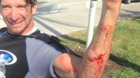 kite surfer attacked by shark _00003208.jpg