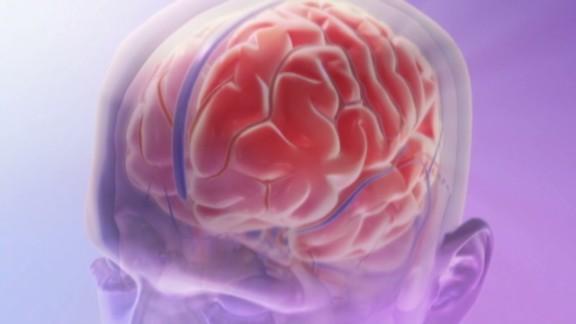 exp hm migraine treatment_00000120.jpg