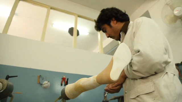 Amputees find new hope with prostheses