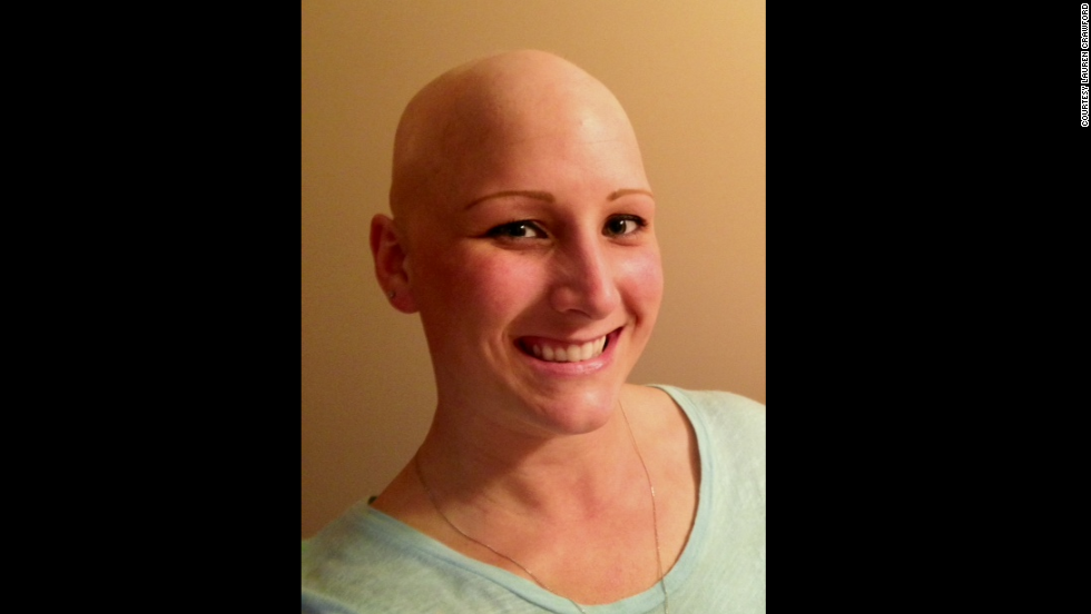 "Lauren Crawford, 29, says after being teased as a teenager because of her alopecia, she never thought she would have a husband or child. Now, she has both. ""Having my husband say 'You're beautiful without the wig,' that type of encouragement made me start looking at myself thinking, 'Yeah, you're right -- I am!' """