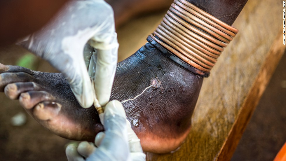 People become infected with Guinea worm after drinking water contaminated with the larvae of a parasitic worm. The larvae then grow into adult worms over the course of a year. The only treatment is to extract the worm.