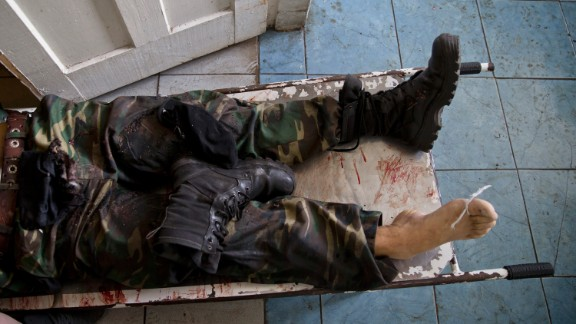 The body of a pro-Russian militant lies on a stretcher at a morgue in Donetsk on May 27. He was killed in clashes around Donetsk