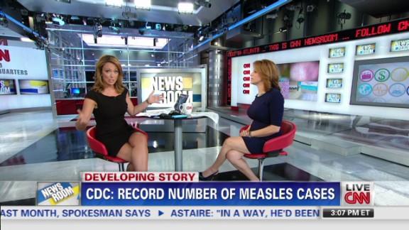 exp cohen measles_00001601.jpg