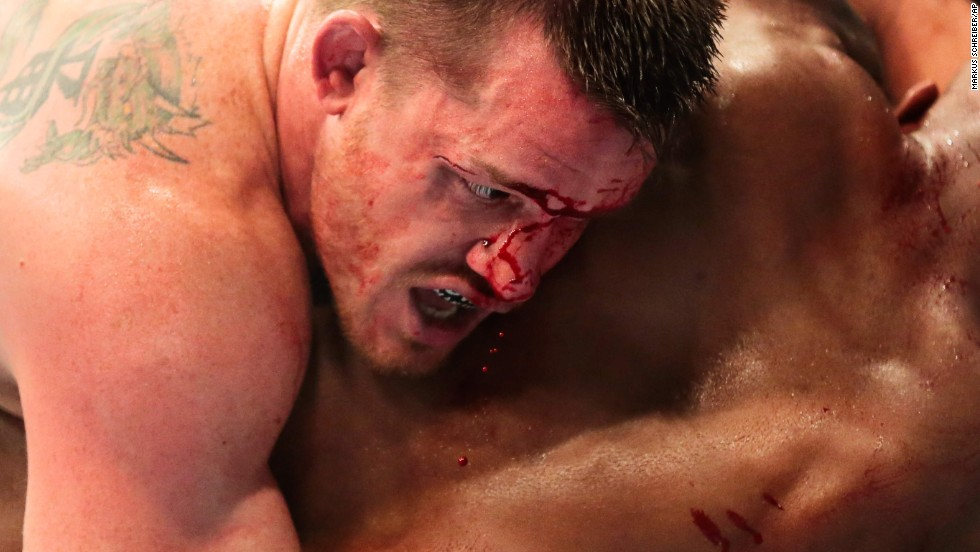 Blood trickles down the face of CB Dolloway as he fights Francis Carmont during the UFC Fight Night event in Berlin on Saturday, May 31. Dolloway won the middleweight bout by unanimous decision.