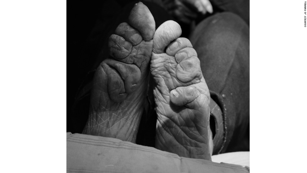 "Feet binding started in the Song dynasty and fell out of fashion in the early 20th century when it was banned by the government. ""Body modification is in all cultures. We all do something to make ourselves more attractive or to help us feel better. Today, we see surgical toe tucks to beautify the foot, rib removal to make the waist smaller,"" says Farrell."