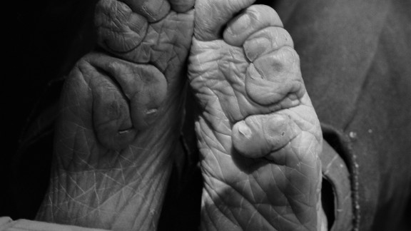 """Feet binding started in the Song dynasty and fell out of fashion in the early 20th century when it was banned by the government. """"Body modification is in all cultures. We all do something to make ourselves more attractive or to help us feel better. Today, we see surgical toe tucks to beautify the foot, rib removal to make the waist smaller,"""" says Farrell."""