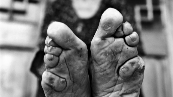 Jo Farrell is a Hong Kong-based photographer who focuses on female traditions that are dying out. In the past eight years, she has photographed 50 women with bound feet in rural China. Most live in an area two hours outside of Jinan, Shandong province. Here we see Zhao Hua Hong