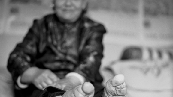 """""""Su Xi Rong had the most beautiful feet in her village. Her feet had the ideal shape, which not only has the toes wrapped, but also the heel compressed towards the toes to create a crevice in the arch of the foot that was considered highly erotic for the husband,"""" says Farrell."""